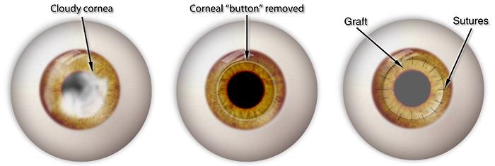 Corneal transplant illustration