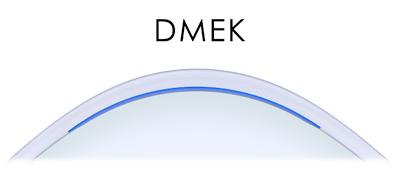 DMEK diagram