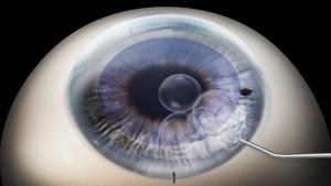 DMEK corneal transplant with Tampa eye surgeon, Craig Berger, MD