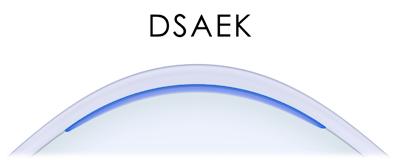 DSAEK diagram