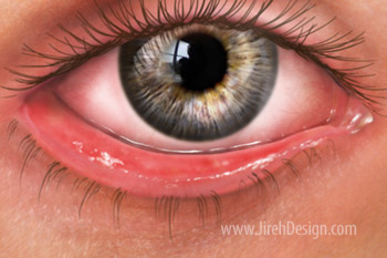 Ectropion is an outward turning of the eyelid