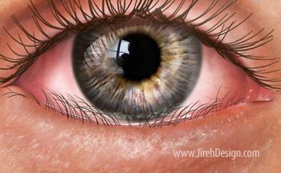 Entropion is an inward turning of the eyelid
