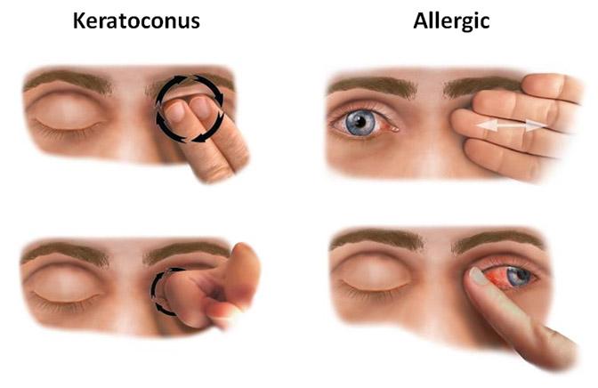 keratoconus treatment tampa bay florida