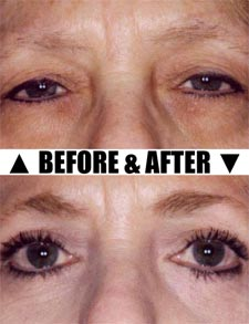 Eyelid surgery before and after pics