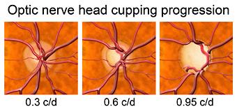Optic nerve damage from glaucoma