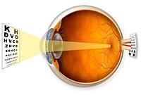 Hyperopia - farsightedness