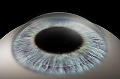 Intacs corneal rings