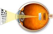 Myopia vision diagram