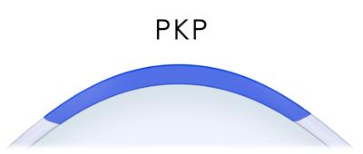 PKP diagram